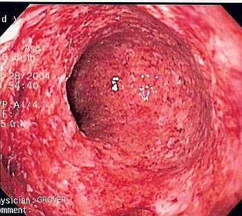 Endoscopic image of severe Crohn's colitis showing diffuse loss of mucosal architecture, friability of mucosa in sigmoid colon and exudate on wall. Photo released into public domain on permission of patient. -- Samir ???????????(R) 07:37, 2 June 2006 (UTC) Category:Endoscopic images