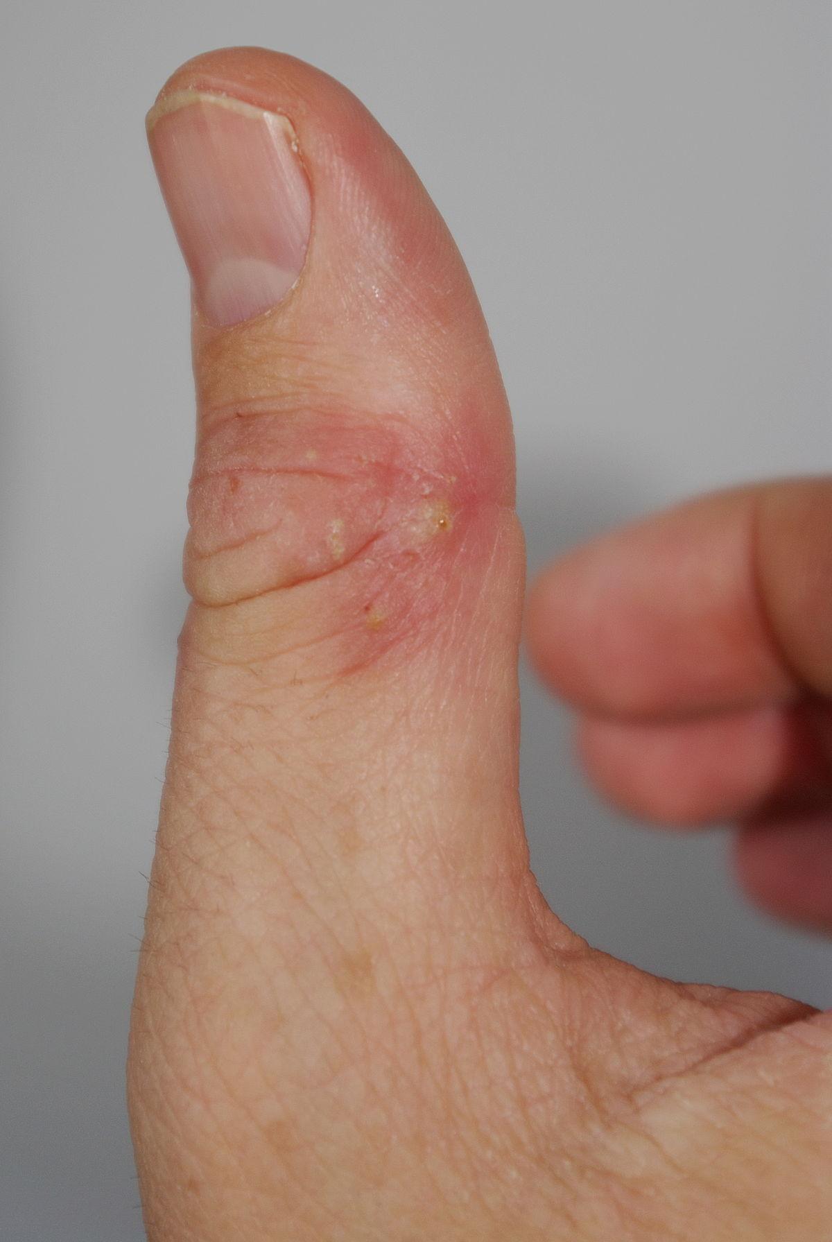 infektion i fingerled