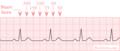 De-Ecgfreq (CardioNetworks ECGpedia).png