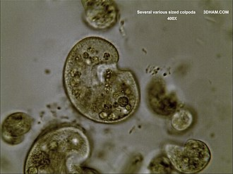 Colpoda - More detailed image of various sized Colpoda at 400X