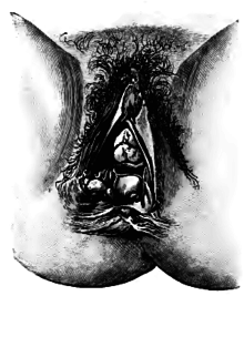 Geburt scheidenriss Scheidenriss vor