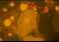 Epithelzelle43621.jpg