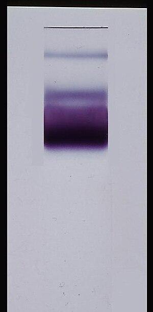 Gel electrophoresis - Image: Glucose 6 Phosphate Dehydrogenase activity stain