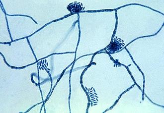 Hortaea werneckii - Micrograph of the fungus Hortaea werneckii