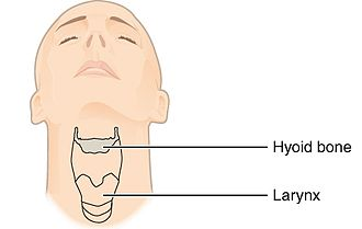 Neanderthal behavior - The hyoid bone and larynx in a modern human.