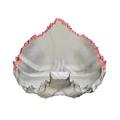 Lambdoid border of occipital bone10.png