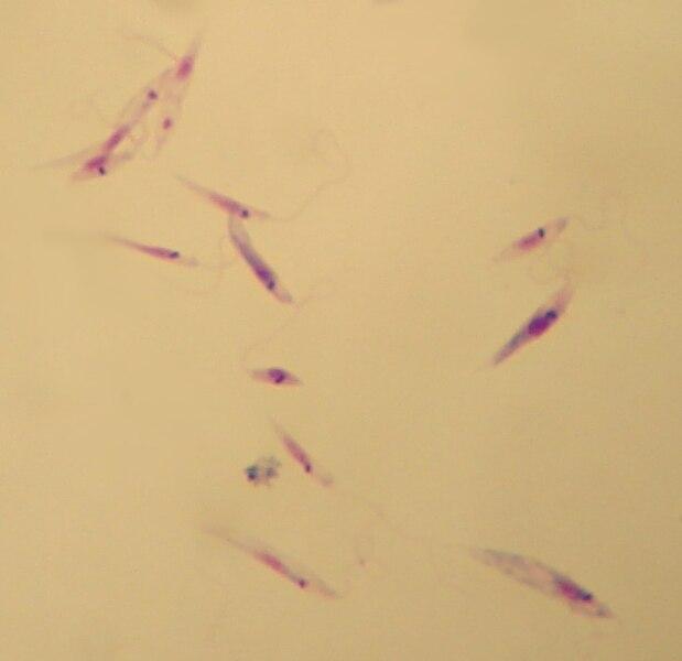 File:Leishmania tropica promastigotes.jpg