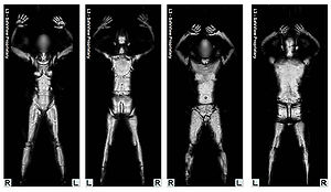 body scan Airport