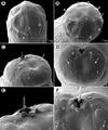 Parasite140007-fig9 Philometra selaris Moravec & Justine, 2014 (Nematoda, Philometridae).tif