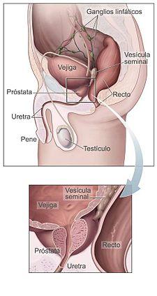 revisión de cálculos en la próstata y jugo de vejiga