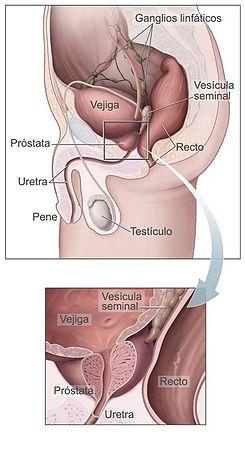 varias pruebas para la próstata