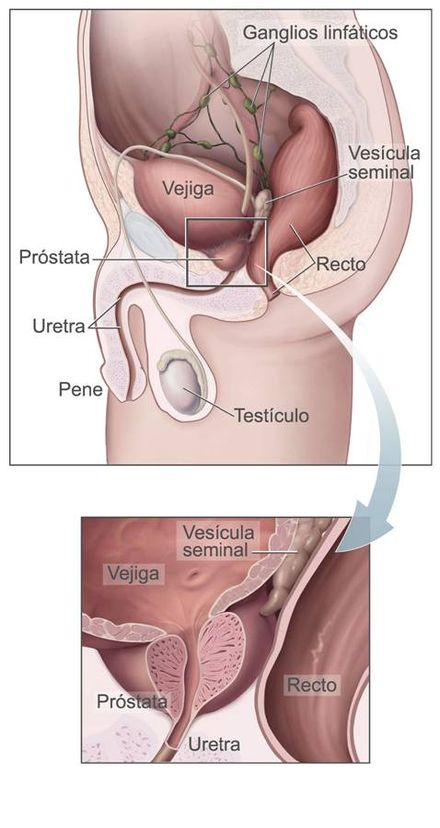 próstata agrandada visibles