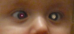 Eye cancer, retinoblastoma