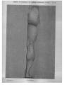 Richer - Anatomie artistique, 2 p. 99.png