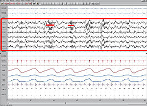 Stage 2 Sleep. EEG highlighted by red box. Sle...