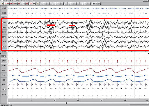 Sleep EEG Stage 2