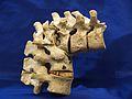 Spine - Kyphosis from Tuberculosis.jpg