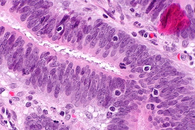 קובץ:Tumour-infiltrating lymphocytes - 2 -- very high mag.jpg