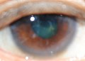 Unexplained multi-colors in the eye's pupil, cornea and iris II.jpg