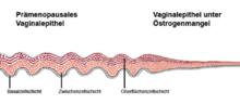 Vaginale Atrophie Wikipedia