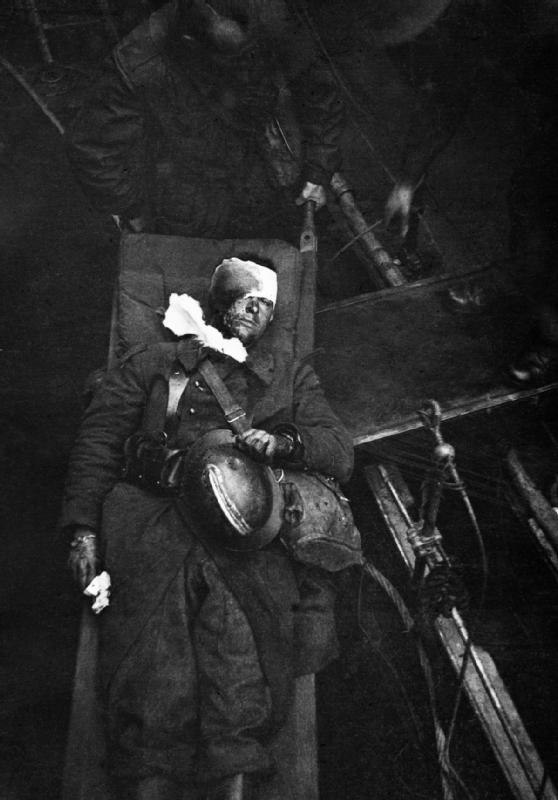 Wounded French soldier after evacuation from Dunkirk