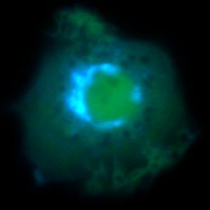 ADP ribosylation factor - Distribution of ARF in a living macrophage, highlighting the Golgi apparatus.