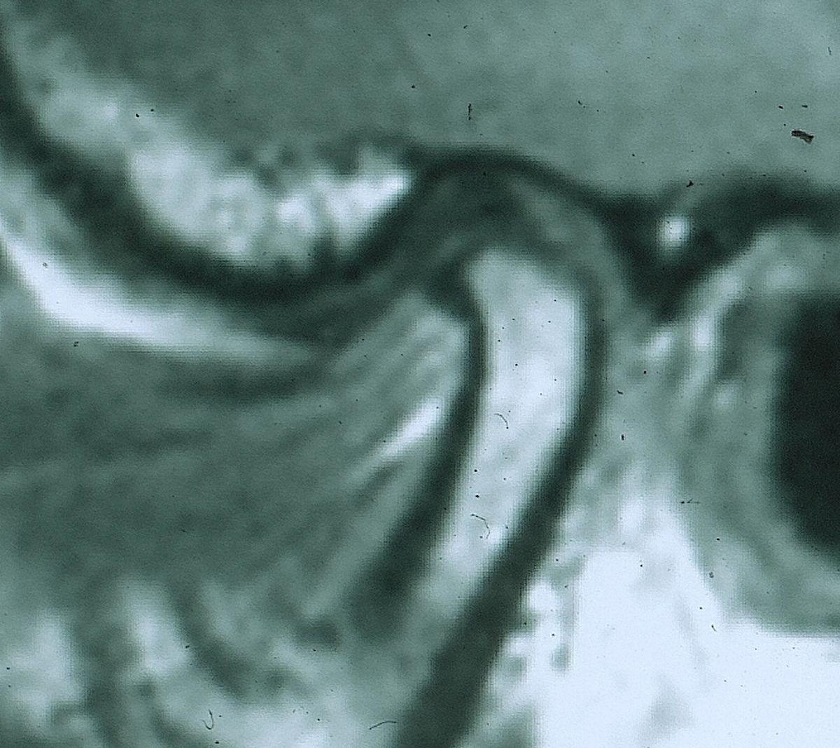 Trastornos de la articulación temporomandibular - Wikipedia, la ...