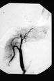 Angiografie eines Pankreastransplantats.tif