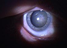 miopie complicată de cataractă)