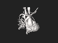 Coarctation of aorta 3DSR File Nevit Dilmen.stl