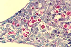 Cryptococcus neoformans - C. neoformans seen in the lung of a patient with AIDS: The inner capsule of the organism stains red in this photomicrograph.