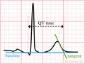 De-LastigeQT1 (CardioNetworks ECGpedia).png