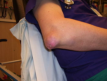 gouty tophi on elbow of middle aged male nurse