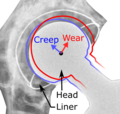 Hip prosthesis liner creep and wear.png