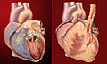Human heart, anterior view, artificial valve, coronary bypass (450128330).jpg