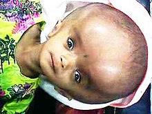 with hydrocephalus Adults congenital