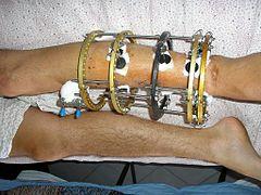 Ilizarov apparatus - Wikipedia