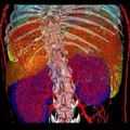 File:In-Vivo-Quantitative-Microcomputed-Tomographic-Analysis-of-Vasculature-and-Organs-in-a-Normal-and-pone.0150085.s005.ogv