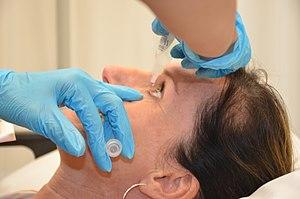 Topical medication - Instilling eye medication