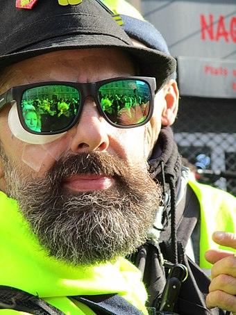 Gilets jaunes leader Jerome Rodrigues who lost an eye after a police intervention Jerome Rodrigues 16 fevrier 2019.jpg