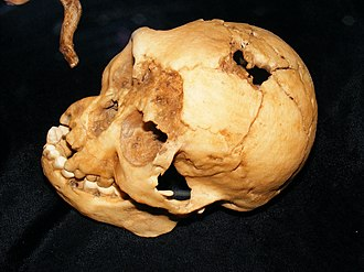 Homo floresiensis - Top view of a cast of the LB1 skull.