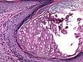Molluscum conatgiosum, vulva, 20X.jpg