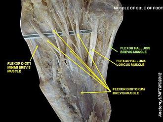Flexor hallucis brevis muscle - Image: Slide 1ABA