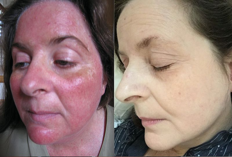 Rosacea Not Drinking Enough Water