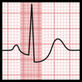 Ta wave plus ST depression (ECG).png
