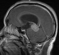 Tumor Germinoma PinealGland2.JPG