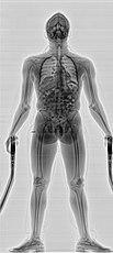 Transmission X-ray Full Body Scanner
