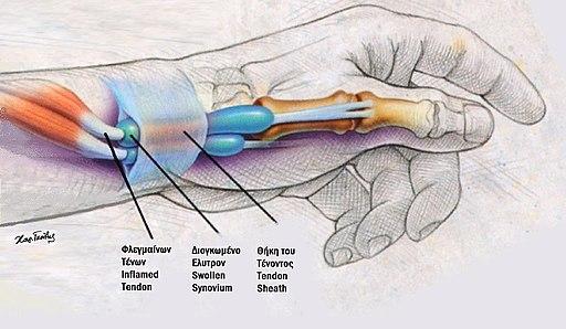 Τενοντοθηκίτις Αντίχειρος De Quervain, ανατομία