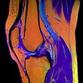 13 Knee MRI T1W TSE R T2W TSE G PDW DR TSE B.jpg