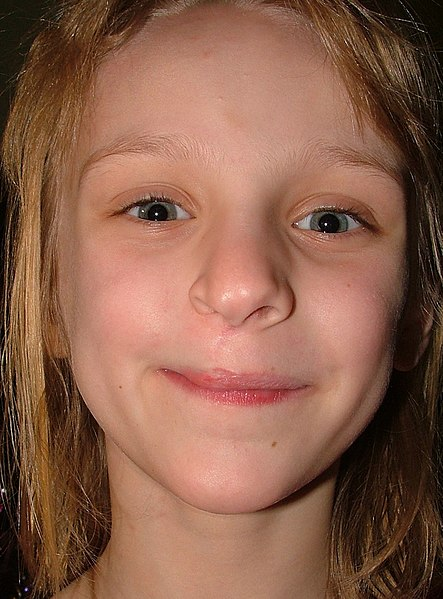 File:8-year-old girl showing scar from infantile facial reconstruction surgery.jpg